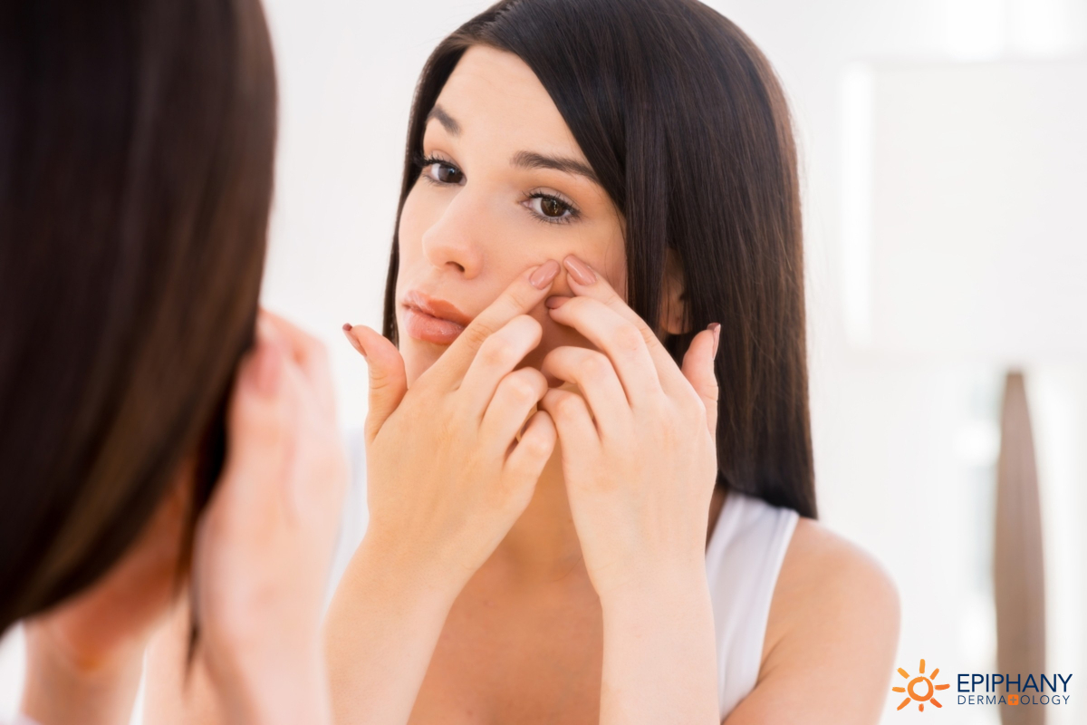 How to Treat Acne Scarring